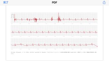 Apple Watch で心電図機能を試してみた。